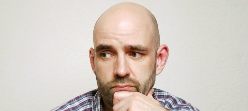 Male Pattern Baldness: Everything You Need To Know
